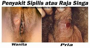 penyakit spilis
